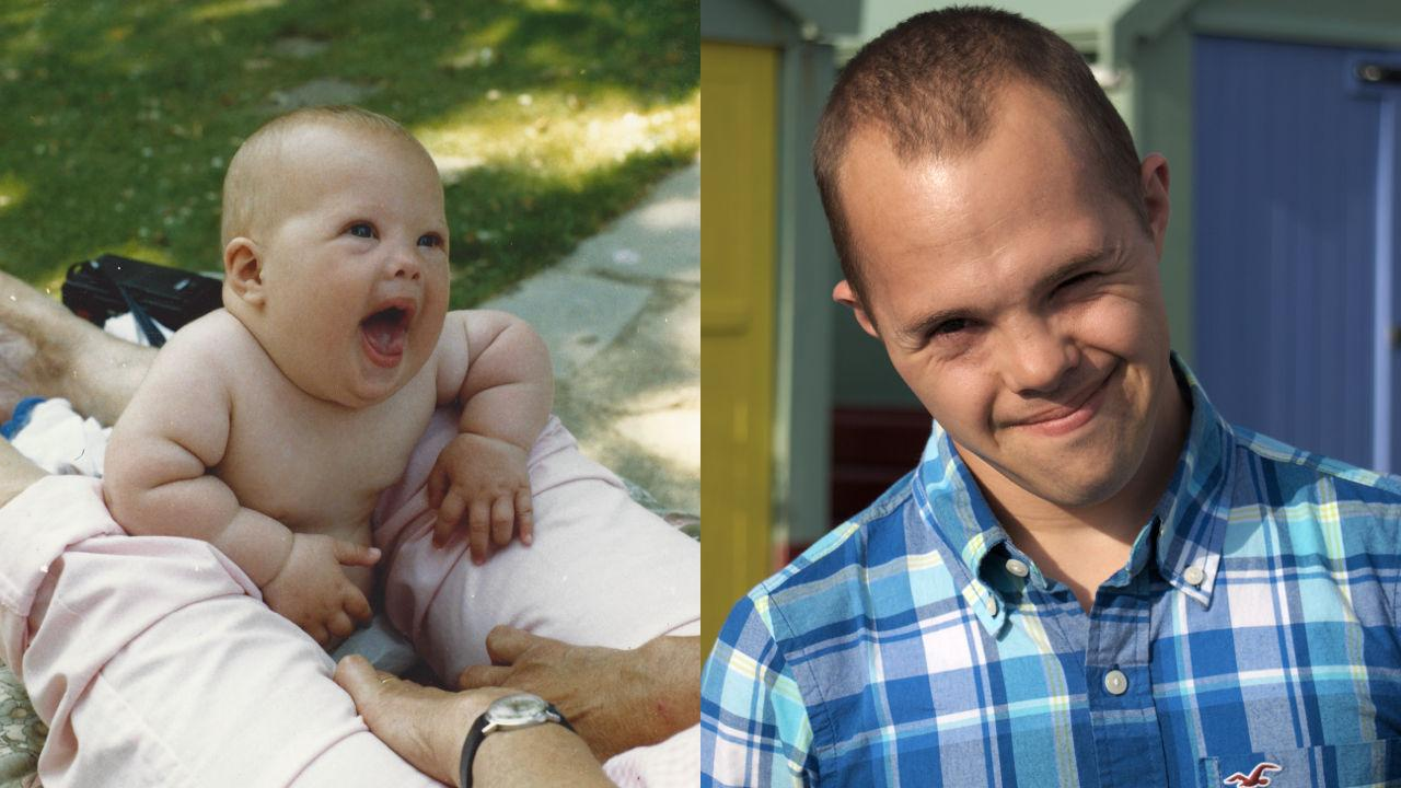 Sam as a baby and now.